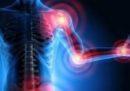Malattie reumatiche, uno su due non sa che si possono prevenire