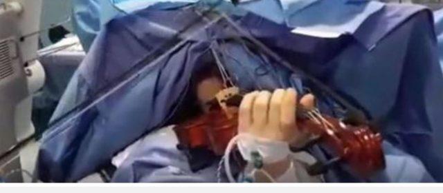 Sanità: operata al cervello violinista mentre suona