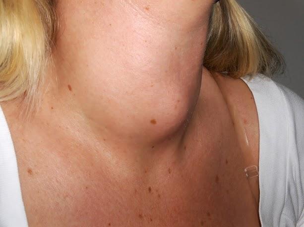Nodulo tiroideo: per prevenire e riconoscere arriva l'APP Thyroid test